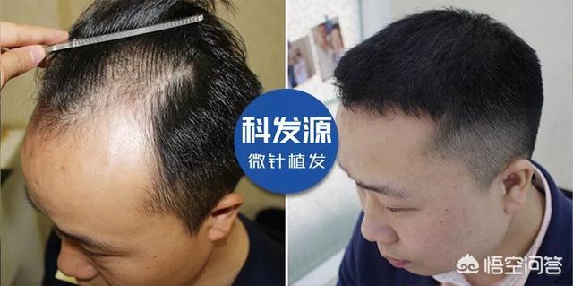 增加头发发量的方法,有什么方法能提高头发密度?