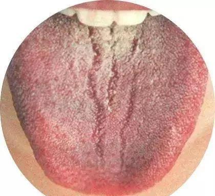 舌头有裂纹是怎么回事,舌头总有裂痕,脾虚!一张方子,健脾养舌,令人深思