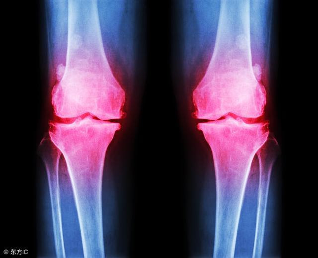 骨质增生怎么治疗呀,如何治疗骨质增生?这3个治疗方法都可一试,切勿大意