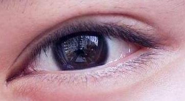 眼睛肿了怎么办,眼睛浮肿怎么快速消除?