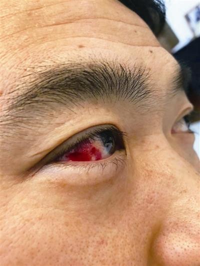 眼睛充血是什么原因引起的起的,眼睛充血要辨证论治