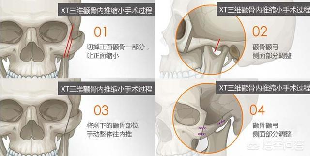 我的颧骨高,脸颊凹陷微整形能纠正吗?