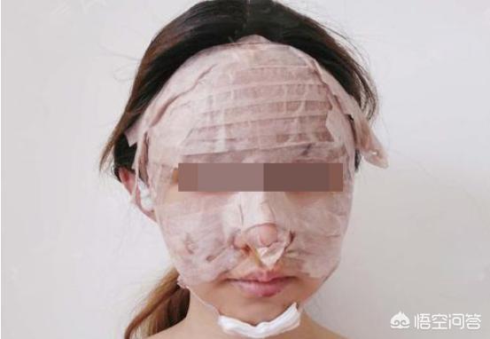 想做全脸脂肪填充,大概几天能消肿?
