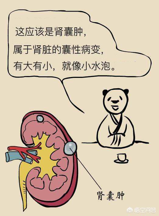 肾囊肿患者的饮食(肾囊肿患者的饮食)