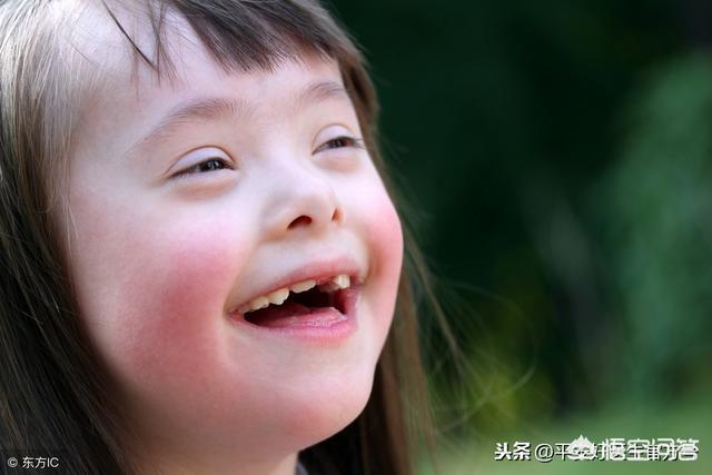 唐氏儿典型面容图片,唐氏综合征患者可以生育吗?