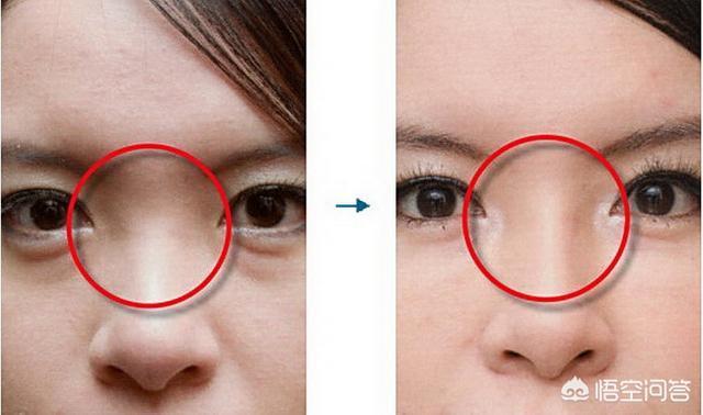 玻尿酸隆鼻可以维持多长时间?