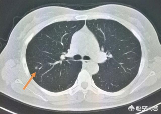 癌症身体会有什么变化 身体患癌,会有哪些信号