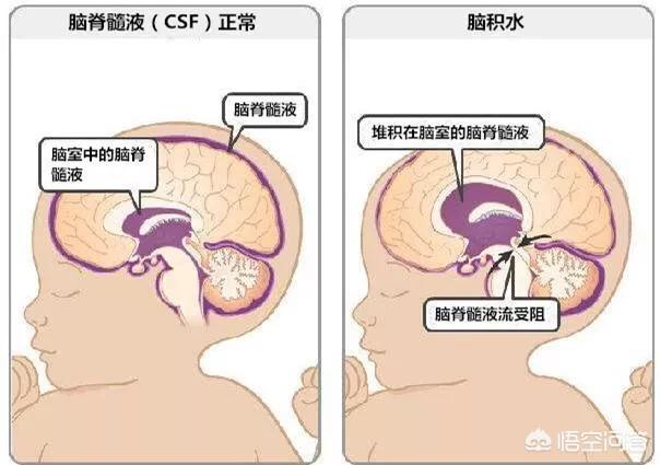 五个月胎儿侧脑室增宽,有自愈的可能吗?