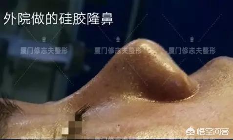隆鼻和鼻部整形有什么区别?