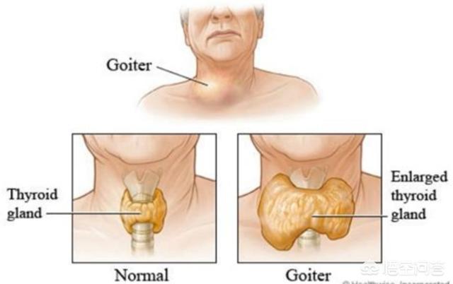 肾病的病症有哪些?肾上腺机能减退能打破砂锅问到底?