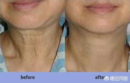 有什么最有效的方法去掉颈纹?