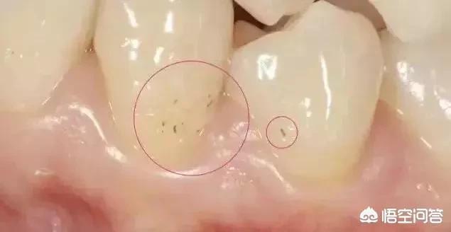 牙周袋图片,牙齿上有黑黑的东西,该怎么办?