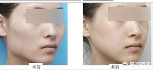 矫正下颌角的方法有什么?手术从哪里开刀?