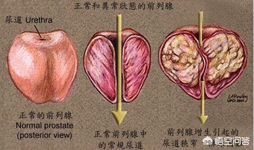 生殖器保健(生殖器保健是什么)