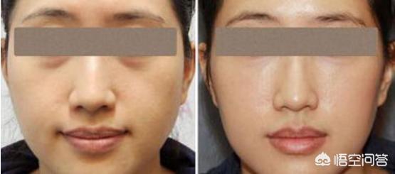 自体脂肪面部填充后怎么消肿?