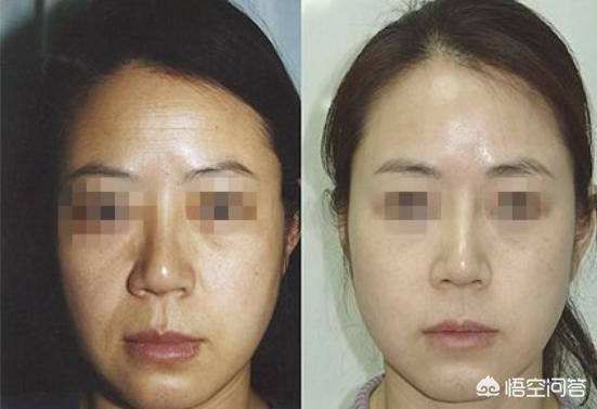 为什么有些人喜欢打瘦脸针和玻尿酸?