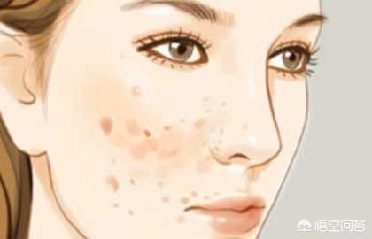 日常中要如何处理痘痘?