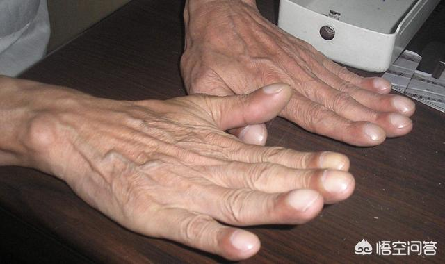 轻度杵状指图片,肺部受重伤会引起杵状指吗?