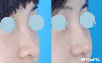 你觉得膨体隆鼻整形好吗?为什么?