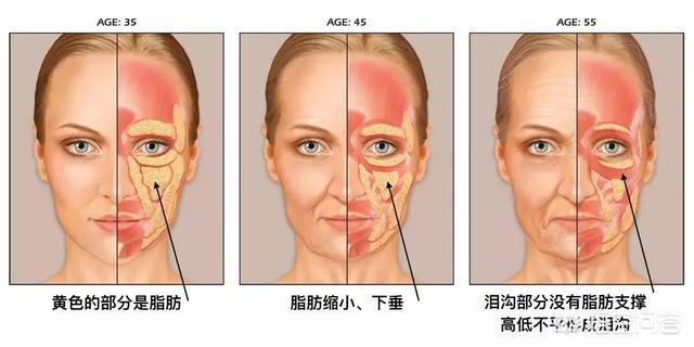 铜雀台玻尿酸填充泪沟能维持多久呢?