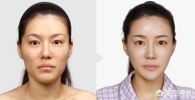 自体脂肪填充可以永久吗?如何正确对待自体脂肪填充美容?
