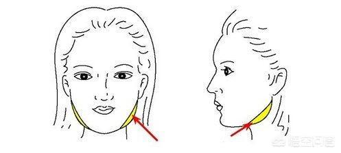 面部吸脂多久能有明显的效果?