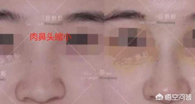 隆鼻有一千多价位的,为何很多鼻综合却要上万?