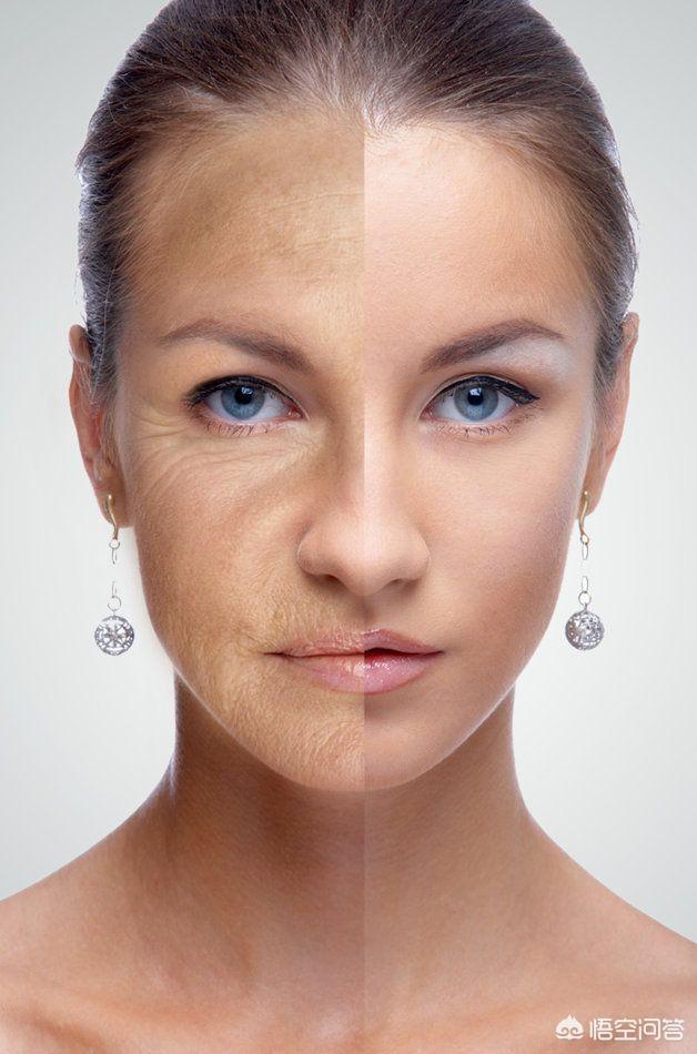 瘦脸针、光子嫩肤之类的技术真的能美容吗?