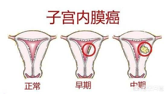 B超能查出子宫内膜癌的分期吗?