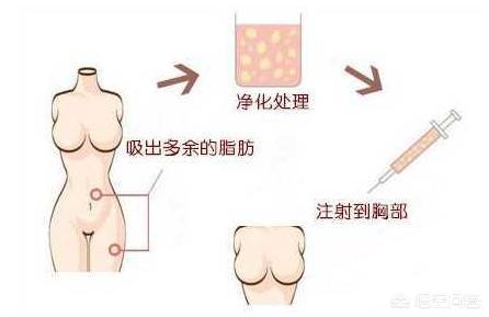 自体脂肪填充胸部会怎么样?