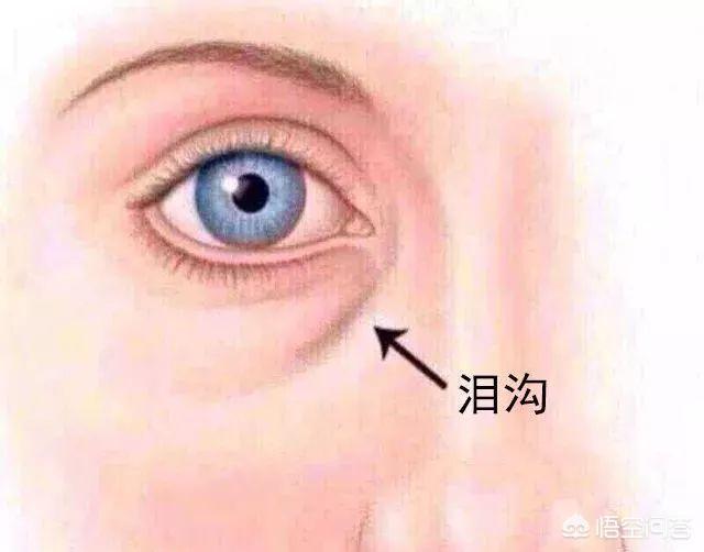 玻尿酸填充泪沟是永久的吗?
