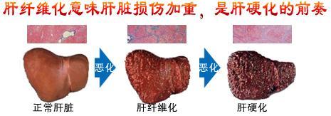 患者有肝纤维化或肝硬化,治疗后能恢复吗?