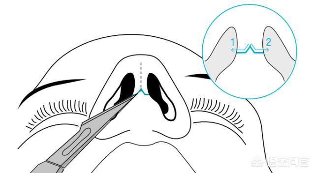 鼻部整容整形会有后遗症吗?