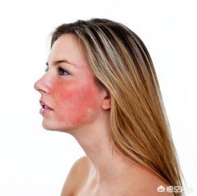 经常做激光美容,皮肤会越变越薄吗?