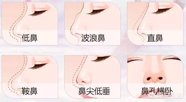 自体脂肪填充鼻梁有哪些优势?
