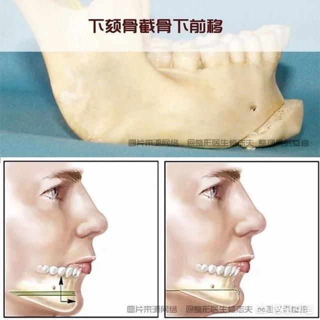 嘴凸下巴后缩,除了戴牙套和整容还有什么办法可以改善吗?