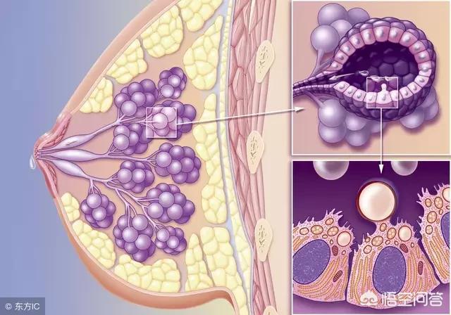 乳腺癌her2基因型什么意思 乳腺癌her2基因扩增什