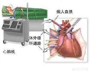 搭桥手术后注意什么礼物,心脏搭桥术后如何合理饮食呢?