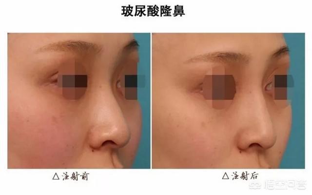 鼻型矫正(鼻型矫正器真的有用吗)