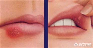 怀孕初期因为慢性扁桃体周围炎嘴角起泡有影响吗?