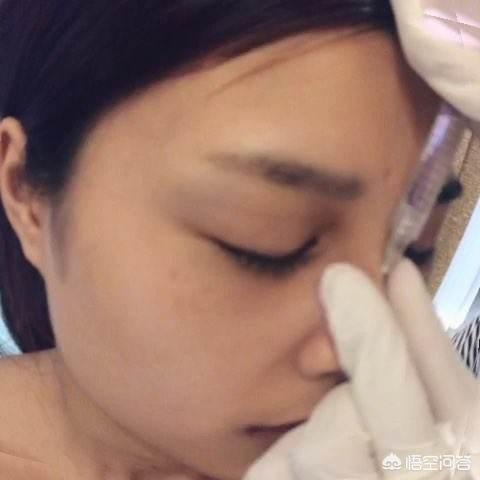 微整形注射玻尿酸可以丰脸么?