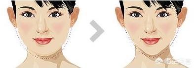 瘦脸吸脂(瘦脸吸脂多少钱)