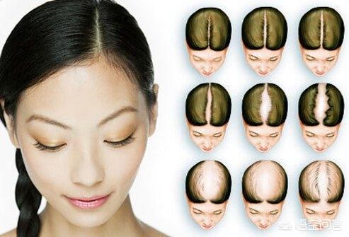 女性掉头发怎么办(女性掉头发特别严重怎么办)