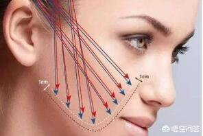 线雕鼻子疼吗?线雕提升一般能维持多久?