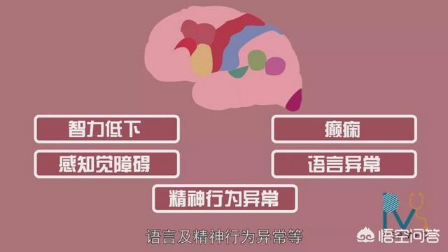 脑瘫宝宝会出现哪些怪异表现?
