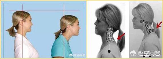 驼背脖子向前倾怎么办 长久头前倾导致脖子后面