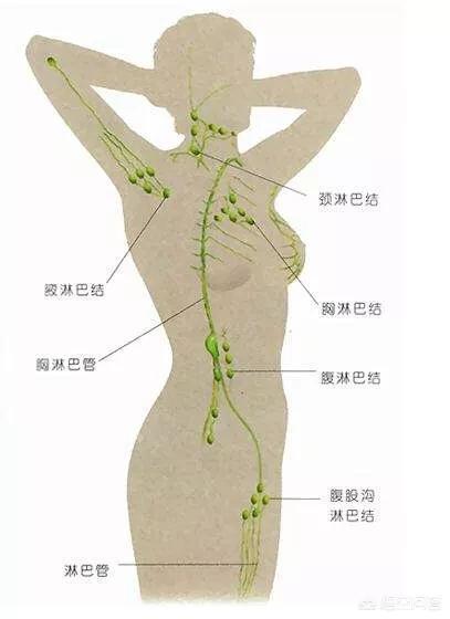 淋巴癌早期症状图片,淋巴结肿大是淋巴癌早期症状吗?
