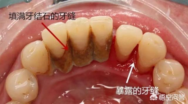 洗牙好不好?牙结石很厚洗牙疼不疼?