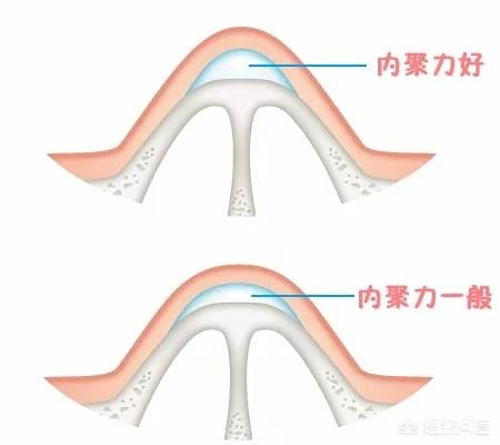 鼻子经常打玻尿酸会变宽吗?