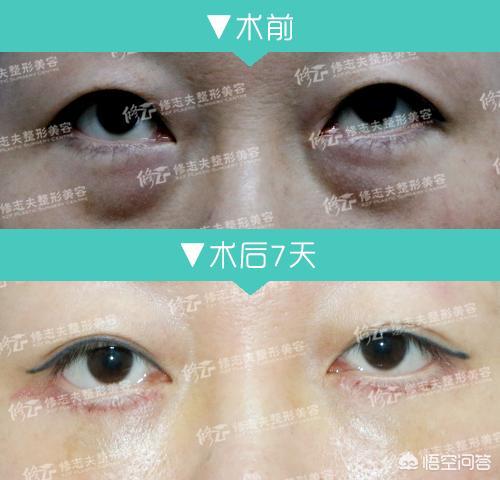 吸脂去眼袋术后要如何护理?